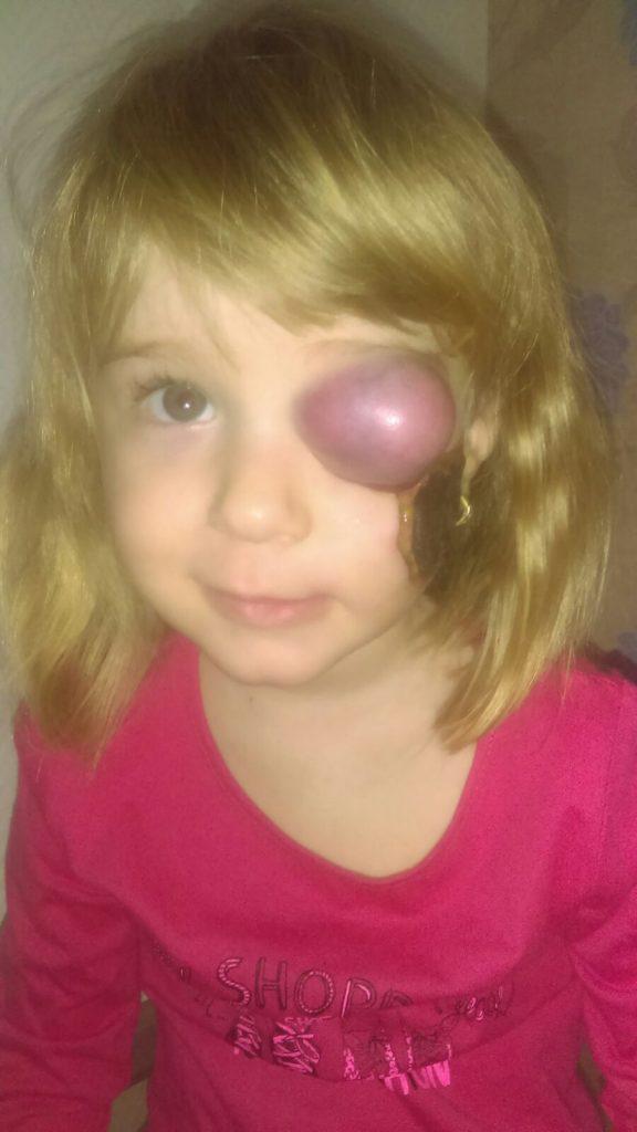 cancer la ochi la copii